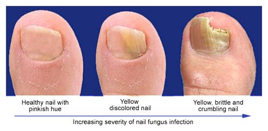 Nail Fungus 1
