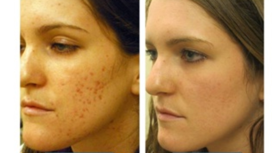 NEW!!! CO2 Fractional Laser Treatment - EXQUISITE SALON AND